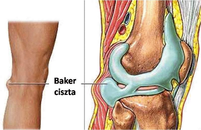 hogyan kezeljük a könyökízület osteochondrozist