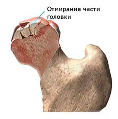 fájdalom a kar kisujjának ízületében éjszakai fájdalom a csípőízületben
