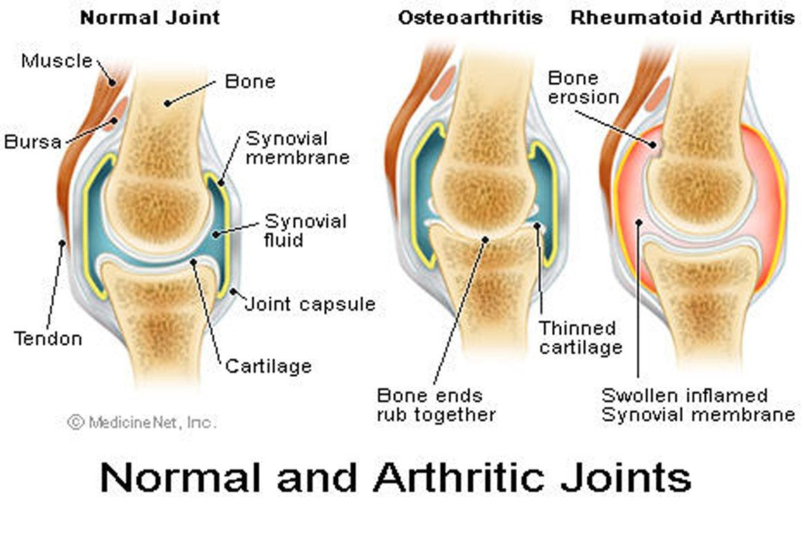 csípőízület osteoarthritis kezelésére szolgáló módszerek