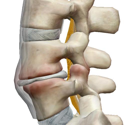 torna boka osteoarthritis kezelésére