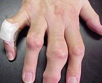 izületi gyulladás kéz ujjain térd-őssejt-kezelés artrózisa
