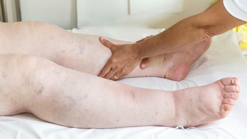 kis láb betegség)