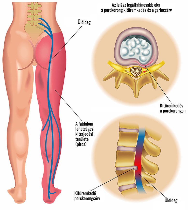 medencei artrózis kezelése