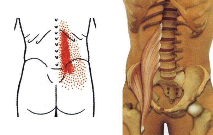 Készítmények a mellkasi nyaki gerinc osteokondrozisához