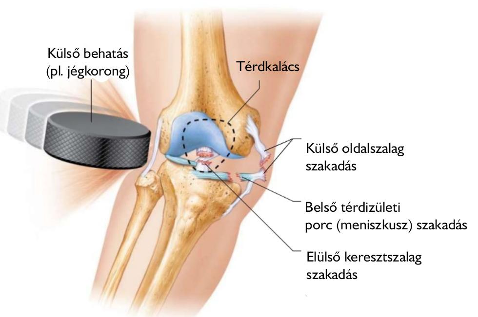 súlyosan sérült ízületi fájdalom után)