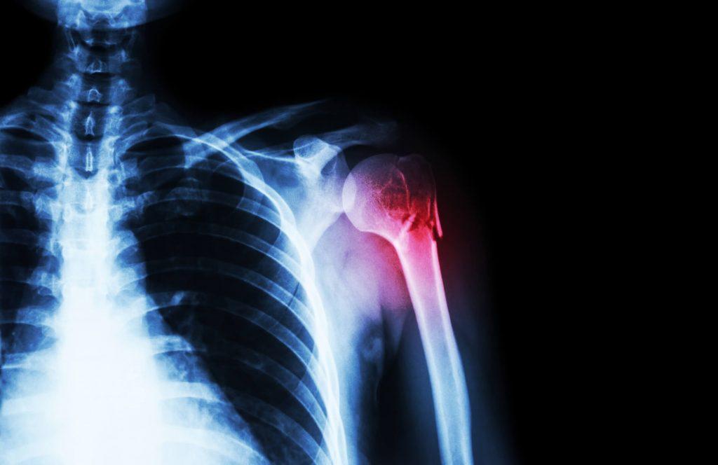 váll meszesedés gyógyítása a rheumatoid arthritis arthrosis kezelése
