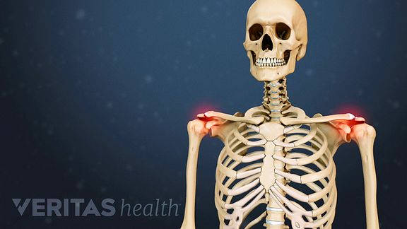 vándorzó ízületi fájdalom az ízület fáj a rágáskor